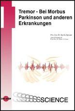 Tremor - Bei Morbus Parkinson und anderen Erkrankungen